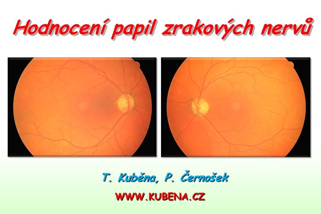 T. Kuběna, P. Černošek WWW.KUBENA.CZ Hodnocení papil zrakových nervů