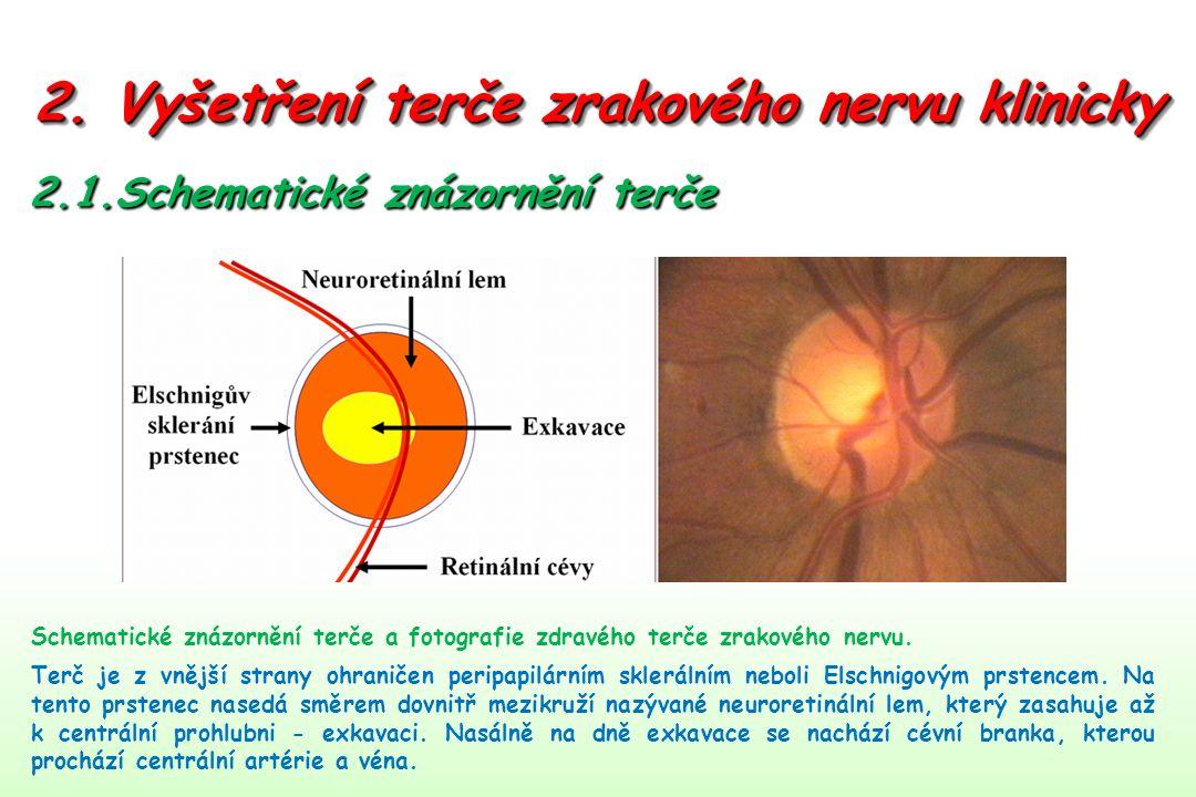 2. Vyšetření terče zrakového nervu klinicky 2.1.Schematické znázornění terče Schematické znázornění terče a fotografie zdravého terče zrakového nervu.
