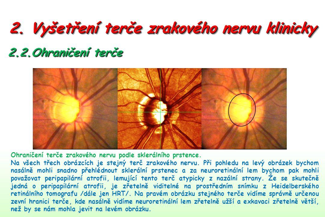 2. Vyšetření terče zrakového nervu klinicky 2.2.Ohraničení terče Ohraničení terče zrakového nervu podle sklerálního prstence. Na všech třech obrázcích