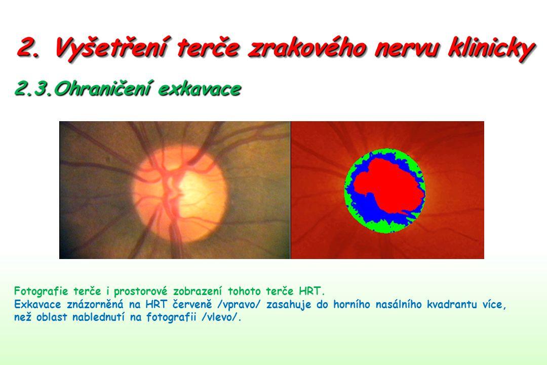 2. Vyšetření terče zrakového nervu klinicky 2.3.Ohraničení exkavace Fotografie terče i prostorové zobrazení tohoto terče HRT. Exkavace znázorněná na H