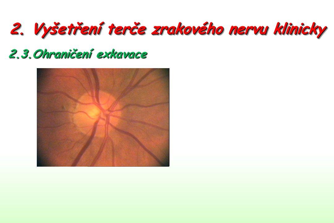 2. Vyšetření terče zrakového nervu klinicky 2.3.Ohraničení exkavace
