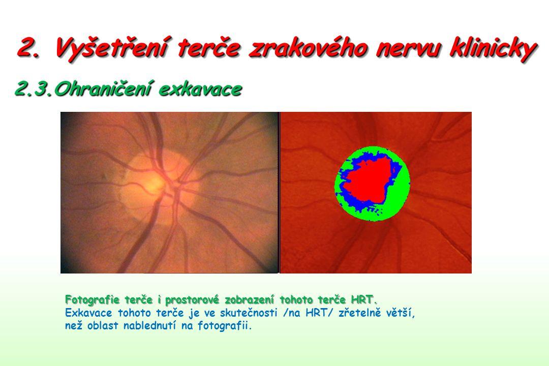 2. Vyšetření terče zrakového nervu klinicky 2.3.Ohraničení exkavace Fotografie terče i prostorové zobrazení tohoto terče HRT. Exkavace tohoto terče je