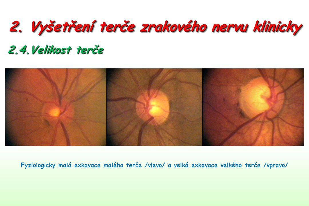 2. Vyšetření terče zrakového nervu klinicky 2.4.Velikost terče Fyziologicky malá exkavace malého terče /vlevo/ a velká exkavace velkého terče /vpravo/