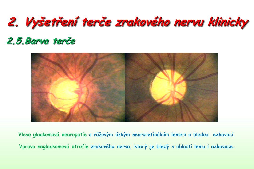 2. Vyšetření terče zrakového nervu klinicky 2.5.Barva terče Vlevo glaukomová neuropatie s růžovým úzkým neuroretinálním lemem a bledou exkavací. Vprav