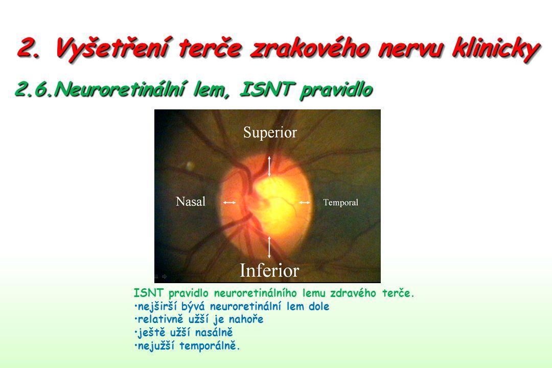 2. Vyšetření terče zrakového nervu klinicky 2.6.Neuroretinální lem, ISNT pravidlo ISNT pravidlo neuroretinálního lemu zdravého terče. nejširší bývá ne