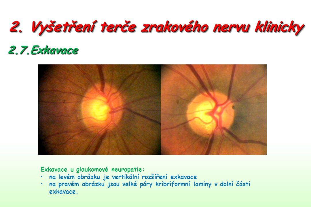 2. Vyšetření terče zrakového nervu klinicky 2.7.Exkavace Exkavace u glaukomové neuropatie: na levém obrázku je vertikální rozšíření exkavace na pravém