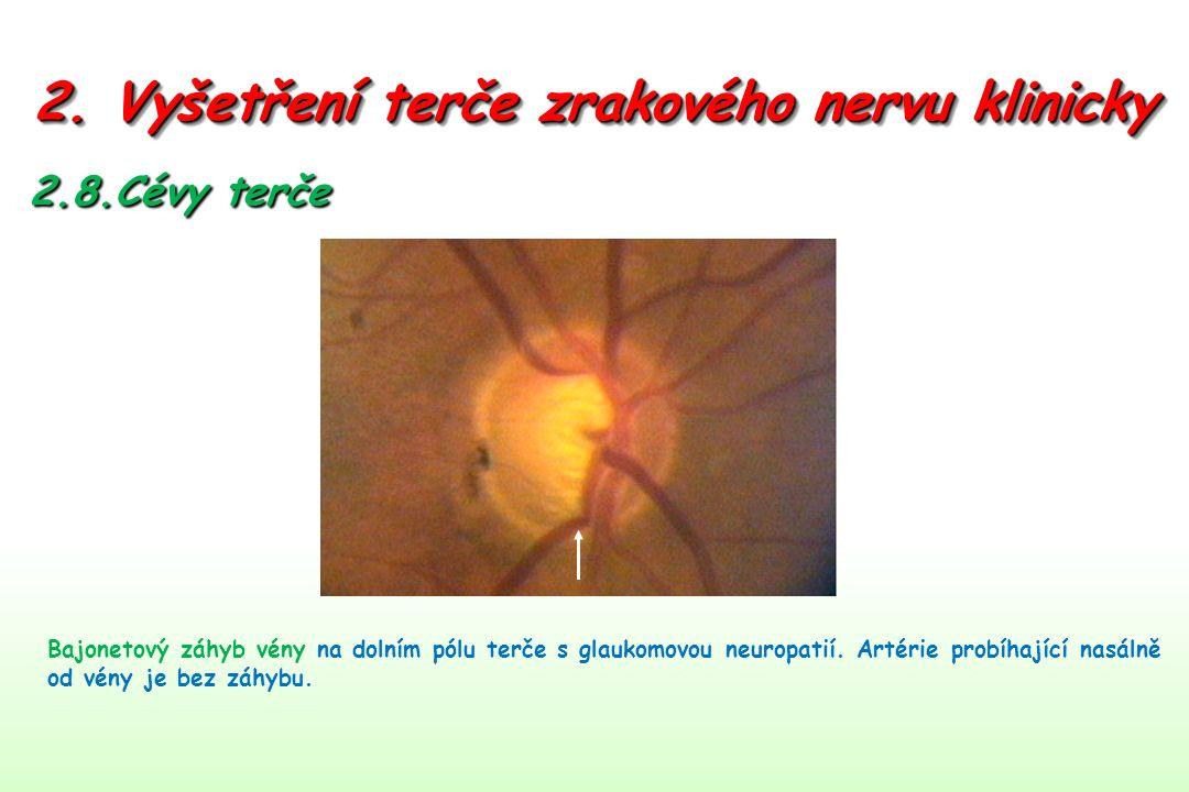 2. Vyšetření terče zrakového nervu klinicky 2.8.Cévy terče Bajonetový záhyb vény na dolním pólu terče s glaukomovou neuropatií. Artérie probíhající na