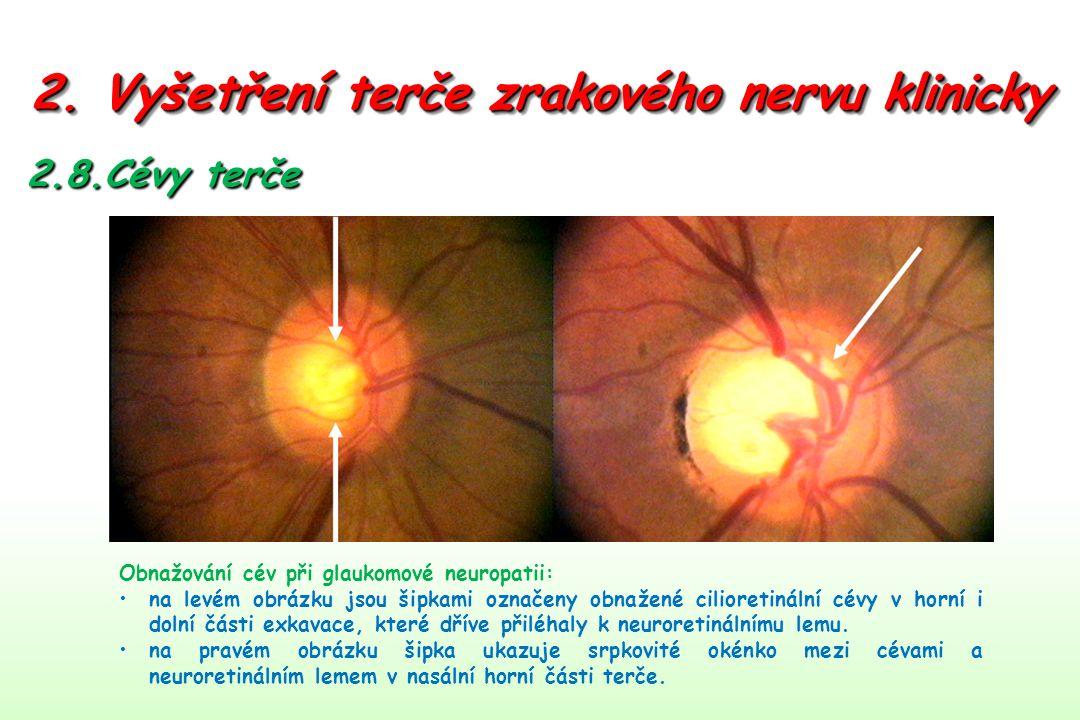 2. Vyšetření terče zrakového nervu klinicky 2.8.Cévy terče Obnažování cév při glaukomové neuropatii: na levém obrázku jsou šipkami označeny obnažené c