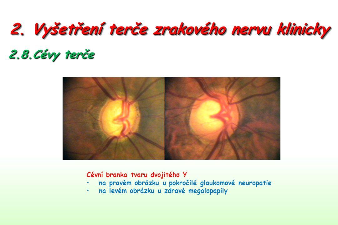 2. Vyšetření terče zrakového nervu klinicky 2.8.Cévy terče Cévní branka tvaru dvojitého Y na pravém obrázku u pokročilé glaukomové neuropatie na levém
