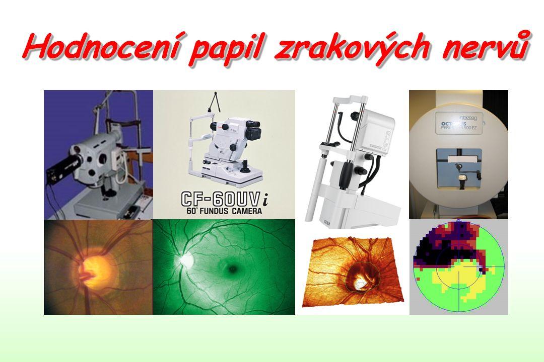 1.Planimetrie terče 2.Vyšetření terče zrakového nervu klinicky 3.Vyšetření peripapilární oblasti klinicky 4.Čtyři typy glaukomové neuropatie Hodnocení papil zrakových nervů