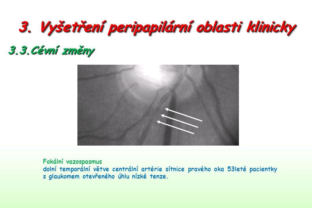 3. Vyšetření peripapilární oblasti klinicky 3.3.Cévní změny Fokální vazospasmus dolní temporální větve centrální artérie sítnice pravého oka 53leté pa