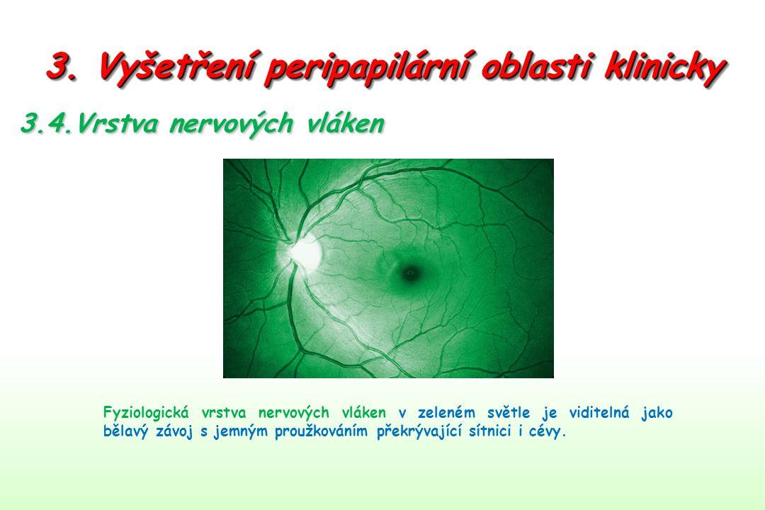 3. Vyšetření peripapilární oblasti klinicky Fyziologická vrstva nervových vláken v zeleném světle je viditelná jako bělavý závoj s jemným proužkováním