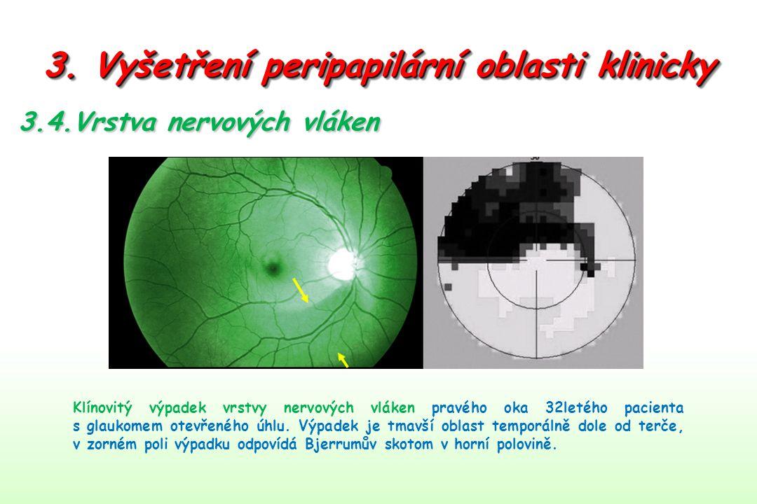 3. Vyšetření peripapilární oblasti klinicky 3.4.Vrstva nervových vláken Klínovitý výpadek vrstvy nervových vláken pravého oka 32letého pacienta s glau