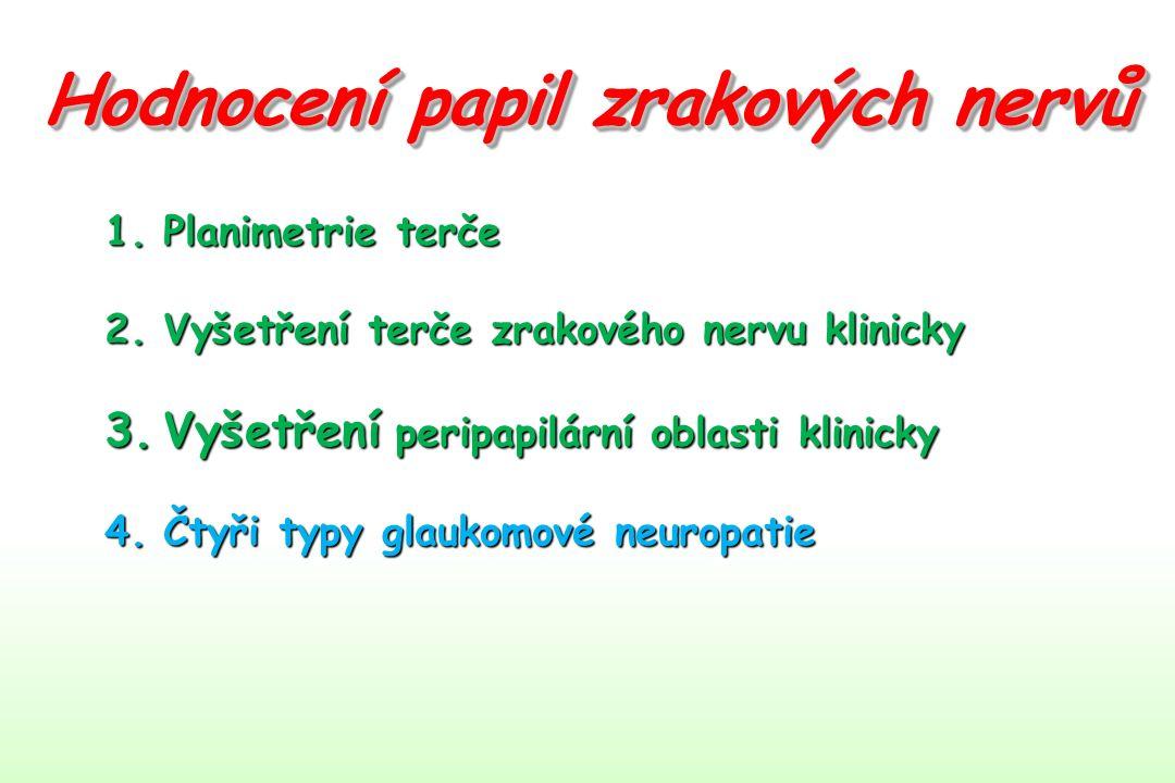 4. Čtyři typy glaukomové neuropatie 4.3.Myopický typ