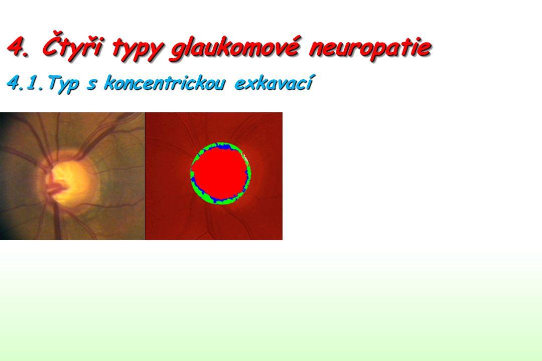 4. Čtyři typy glaukomové neuropatie 4.1.Typ s koncentrickou exkavací