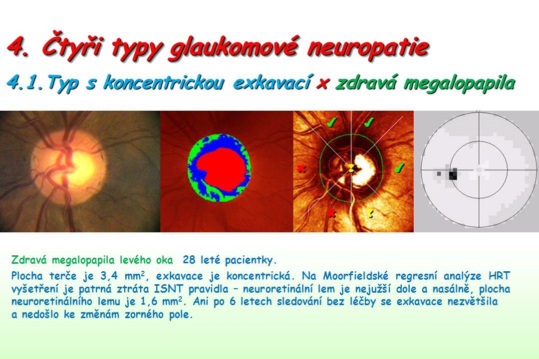 4. Čtyři typy glaukomové neuropatie Zdravá megalopapila levého oka 28 leté pacientky.