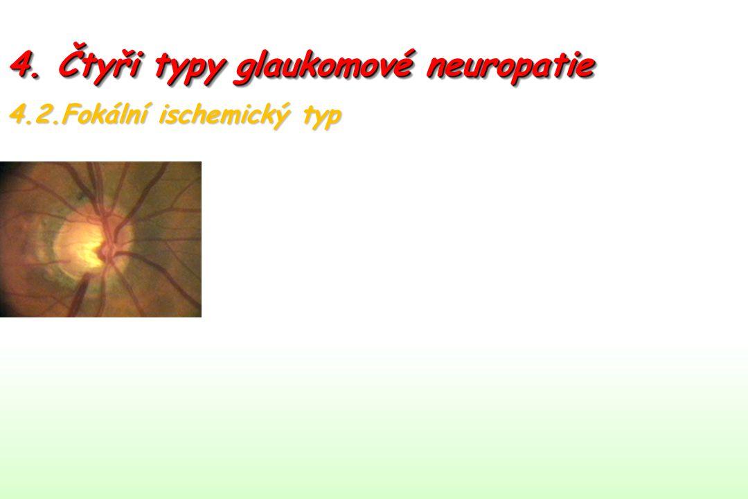 4. Čtyři typy glaukomové neuropatie 4.2.Fokální ischemický typ