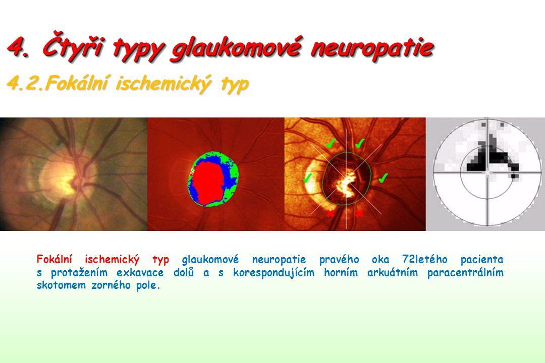 4. Čtyři typy glaukomové neuropatie 4.2.Fokální ischemický typ Fokální ischemický typ glaukomové neuropatie pravého oka 72letého pacienta s protažením