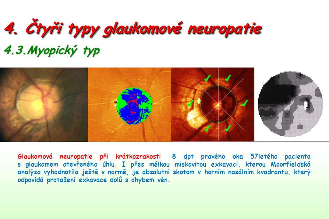 4. Čtyři typy glaukomové neuropatie 4.3.Myopický typ Glaukomová neuropatie při krátkozrakosti -8 dpt pravého oka 57letého pacienta s glaukomem otevřen