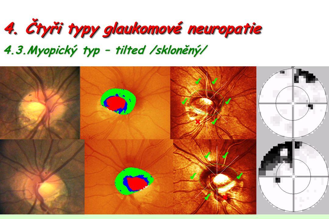 4. Čtyři typy glaukomové neuropatie 4.3.Myopický typ – tilted /skloněný/