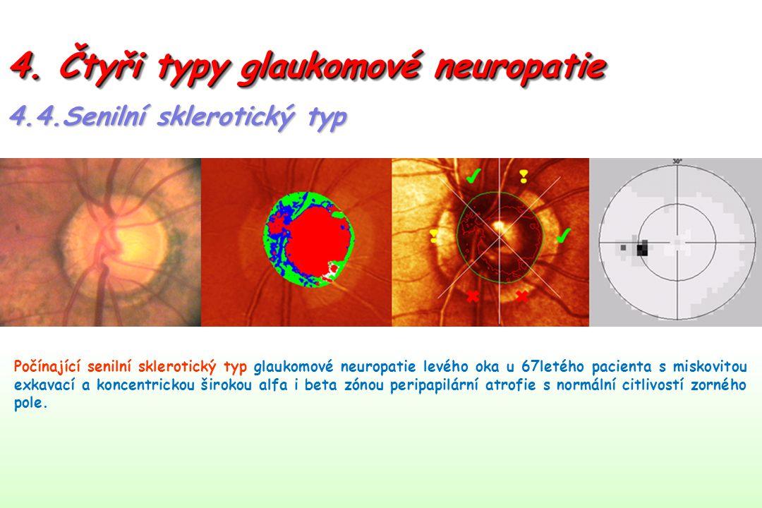 4. Čtyři typy glaukomové neuropatie 4.4.Senilní sklerotický typ Počínající senilní sklerotický typ glaukomové neuropatie levého oka u 67letého pacient