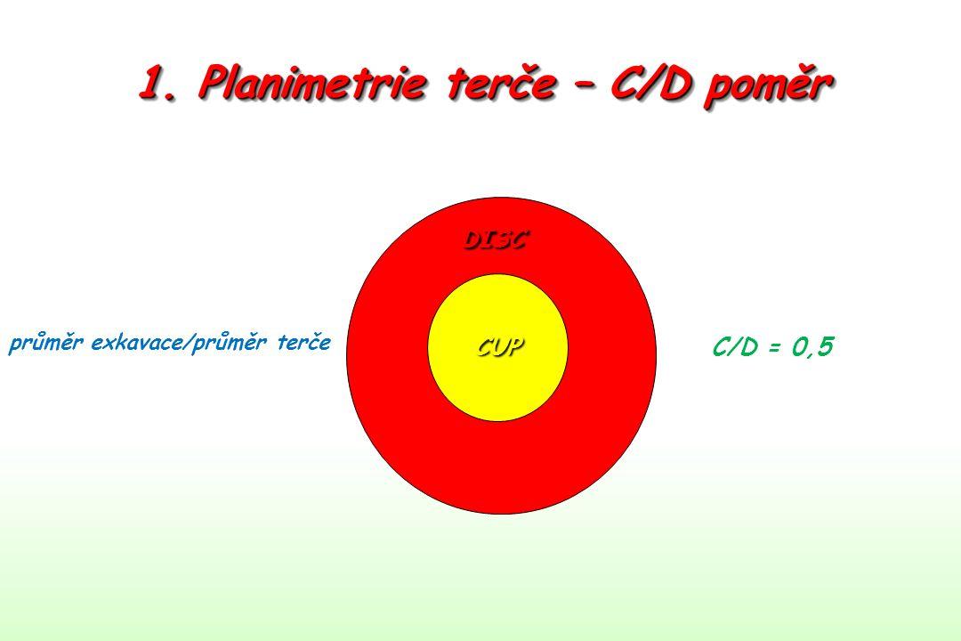 1. Planimetrie terče – C/D poměr průměr exkavace/průměr terče CUP DISC C/D = 0,5