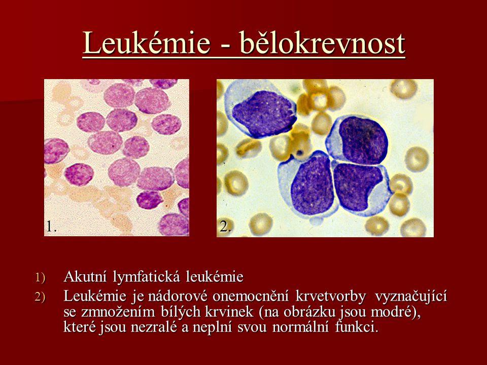Leukémie - bělokrevnost 1) Akutní lymfatická leukémie 2) Leukémie je nádorové onemocnění krvetvorby vyznačující se zmnožením bílých krvinek (na obrázku jsou modré), které jsou nezralé a neplní svou normální funkci.