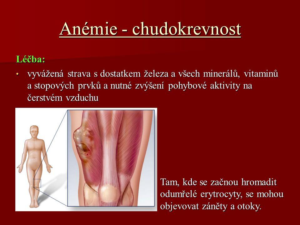 Leukémie - bělokrevnost Co je to leukémie.