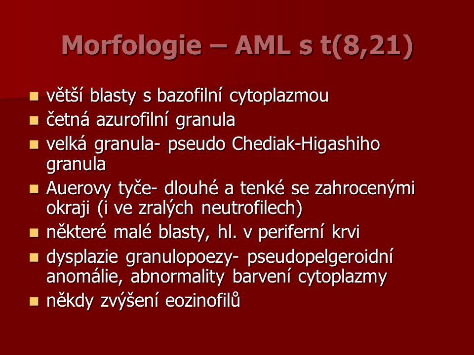 Morfologie – AML s t(8,21) větší blasty s bazofilní cytoplazmou větší blasty s bazofilní cytoplazmou četná azurofilní granula četná azurofilní granula velká granula- pseudo Chediak-Higashiho granula velká granula- pseudo Chediak-Higashiho granula Auerovy tyče- dlouhé a tenké se zahrocenými okraji (i ve zralých neutrofilech) Auerovy tyče- dlouhé a tenké se zahrocenými okraji (i ve zralých neutrofilech) některé malé blasty, hl.