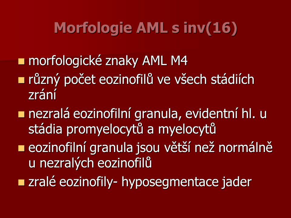 Morfologie AML s inv(16) morfologické znaky AML M4 morfologické znaky AML M4 různý počet eozinofilů ve všech stádiích zrání různý počet eozinofilů ve všech stádiích zrání nezralá eozinofilní granula, evidentní hl.