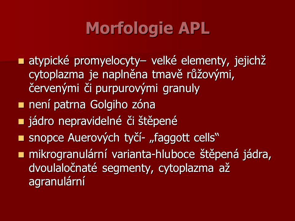 """Morfologie APL atypické promyelocyty– velké elementy, jejichž cytoplazma je naplněna tmavě růžovými, červenými či purpurovými granuly atypické promyelocyty– velké elementy, jejichž cytoplazma je naplněna tmavě růžovými, červenými či purpurovými granuly není patrna Golgiho zóna není patrna Golgiho zóna jádro nepravidelné či štěpené jádro nepravidelné či štěpené snopce Auerových tyčí- """"faggott cells snopce Auerových tyčí- """"faggott cells mikrogranulární varianta-hluboce štěpená jádra, dvoulaločnaté segmenty, cytoplazma až agranulární mikrogranulární varianta-hluboce štěpená jádra, dvoulaločnaté segmenty, cytoplazma až agranulární"""