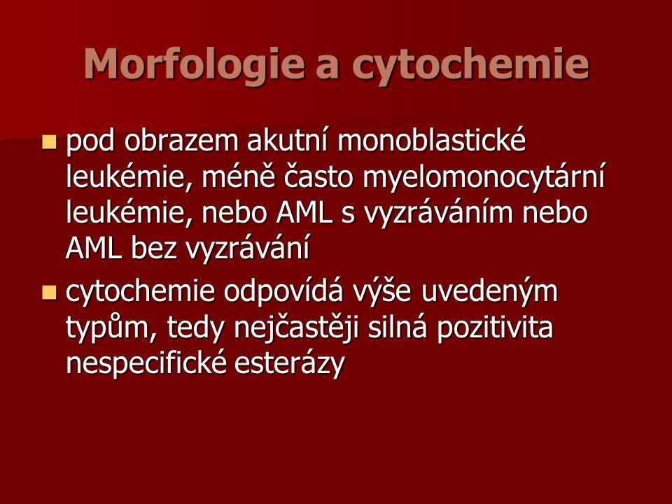 Morfologie a cytochemie pod obrazem akutní monoblastické leukémie, méně často myelomonocytární leukémie, nebo AML s vyzráváním nebo AML bez vyzrávání pod obrazem akutní monoblastické leukémie, méně často myelomonocytární leukémie, nebo AML s vyzráváním nebo AML bez vyzrávání cytochemie odpovídá výše uvedeným typům, tedy nejčastěji silná pozitivita nespecifické esterázy cytochemie odpovídá výše uvedeným typům, tedy nejčastěji silná pozitivita nespecifické esterázy