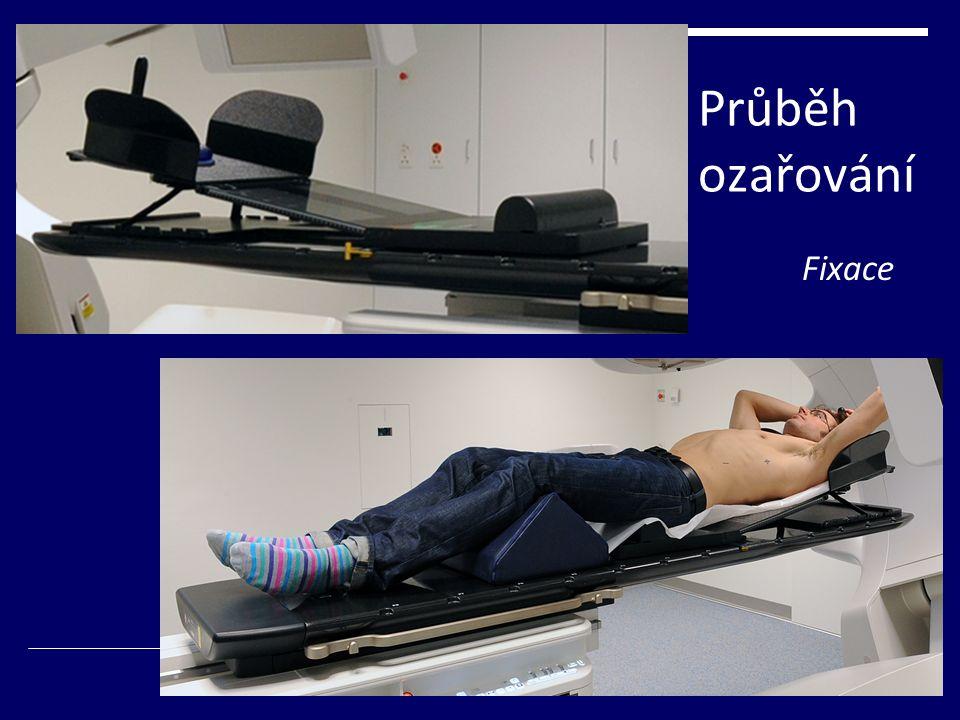 Komplikace  Závisí na vnímavosti ozařovaného pacienta  Celkové: změny v krevním obraze, nevolnost, únava, nechutenství...