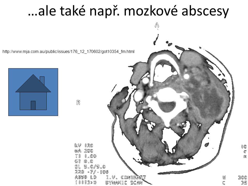…ale také např. mozkové abscesy http://www.mja.com.au/public/issues/176_12_170602/got10354_fm.html