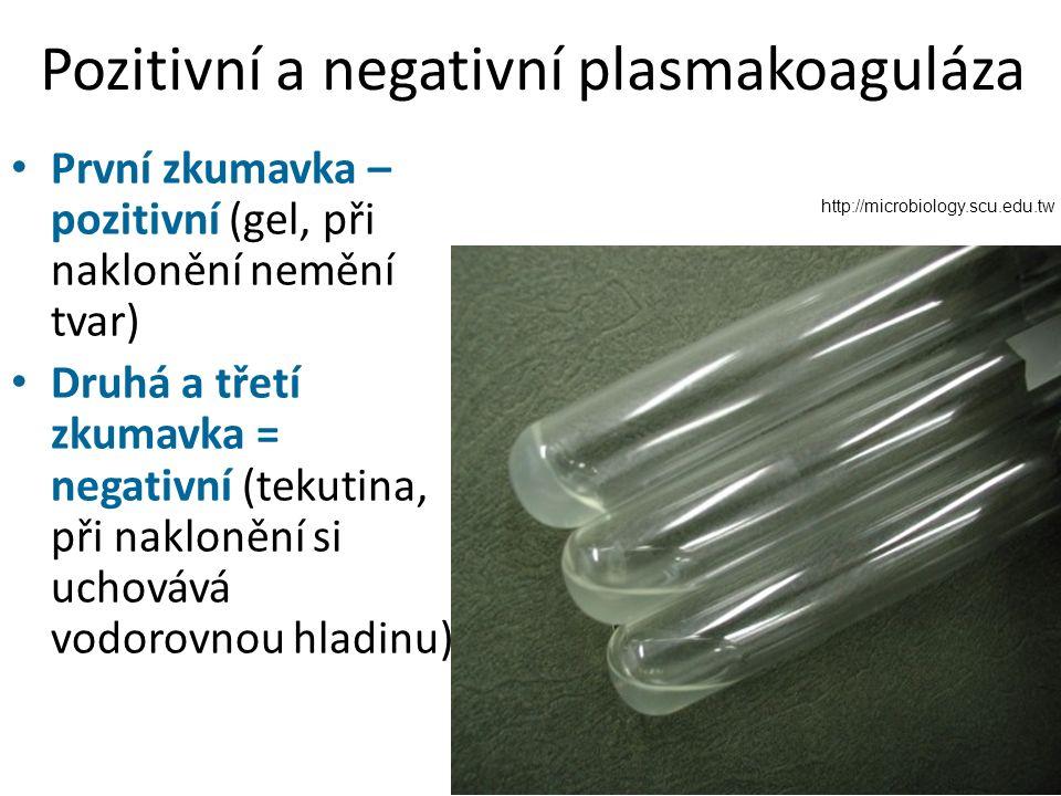 Pozitivní a negativní plasmakoaguláza http://microbiology.scu.edu.tw První zkumavka – pozitivní (gel, při naklonění nemění tvar) Druhá a třetí zkumavka = negativní (tekutina, při naklonění si uchovává vodorovnou hladinu)