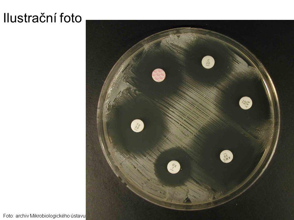 Ilustrační foto Foto: archiv Mikrobiologického ústavu