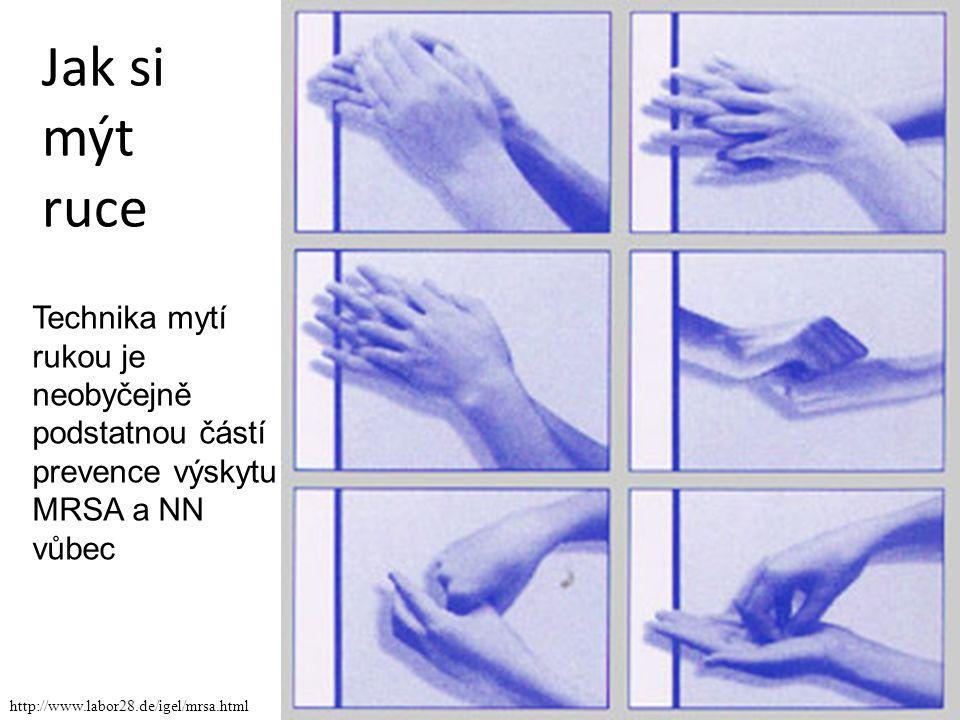 Jak si mýt ruce http://www.labor28.de/igel/mrsa.html Technika mytí rukou je neobyčejně podstatnou částí prevence výskytu MRSA a NN vůbec