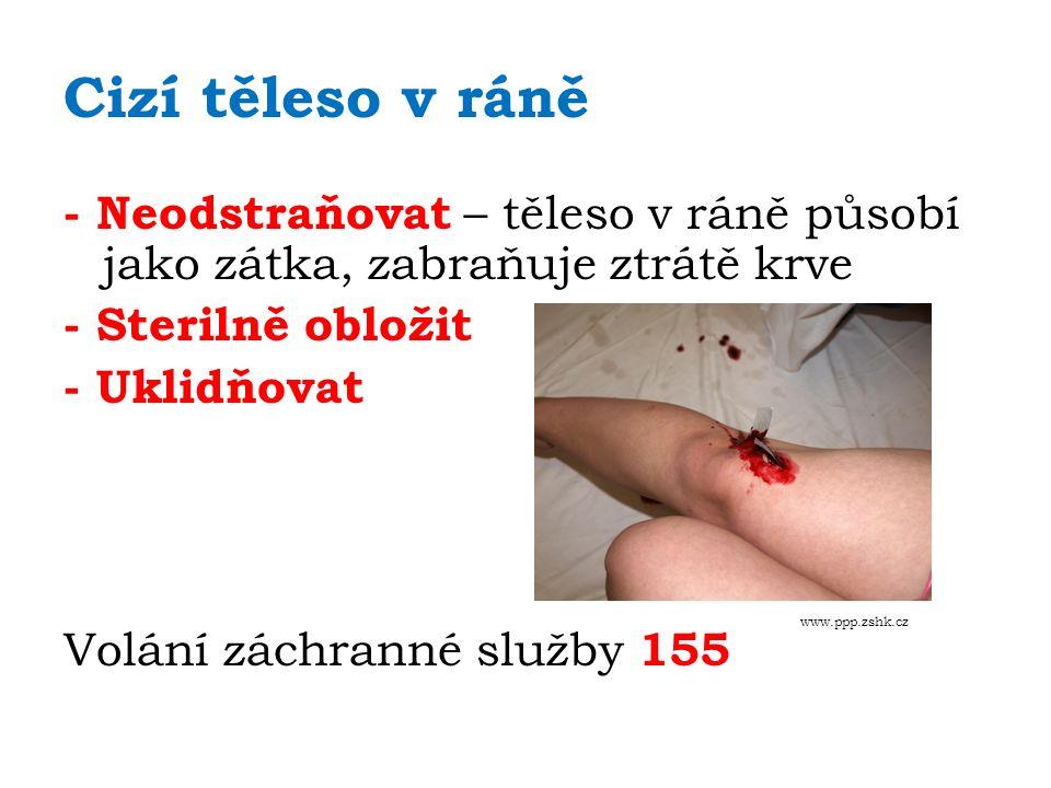 Cizí těleso v ráně - Neodstraňovat – těleso v ráně působí jako zátka, zabraňuje ztrátě krve - Sterilně obložit - Uklidňovat Volání záchranné služby 155 www.ppp.zshk.cz
