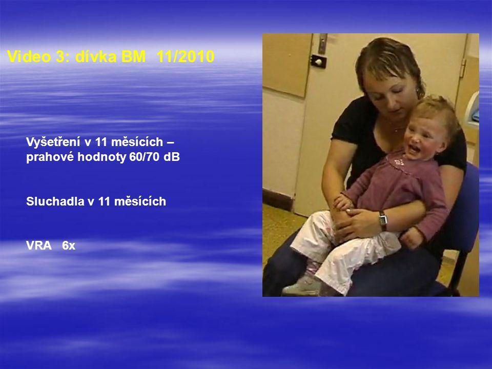 Video 3: dívka BM 11/2010 Vyšetření v 11 měsících – prahové hodnoty 60/70 dB Sluchadla v 11 měsících VRA 6x