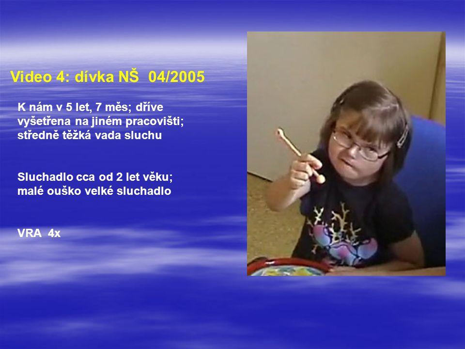 Video 4: dívka NŠ 04/2005 K nám v 5 let, 7 měs; dříve vyšetřena na jiném pracovišti; středně těžká vada sluchu Sluchadlo cca od 2 let věku; malé ouško velké sluchadlo VRA 4x