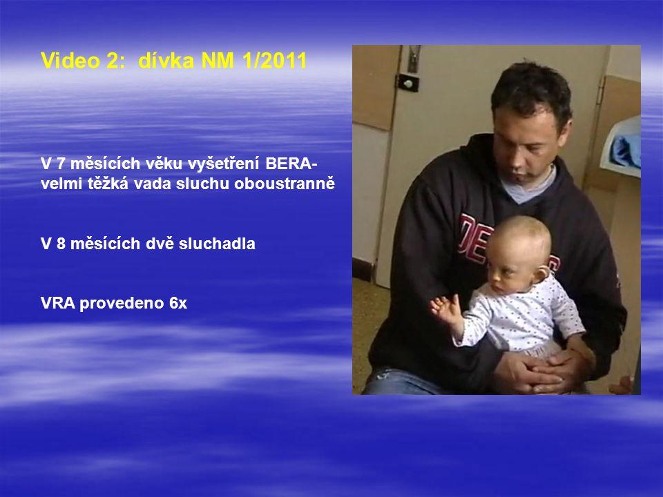 Video 2: dívka NM 1/2011 V 7 měsících věku vyšetření BERA- velmi těžká vada sluchu oboustranně V 8 měsících dvě sluchadla VRA provedeno 6x