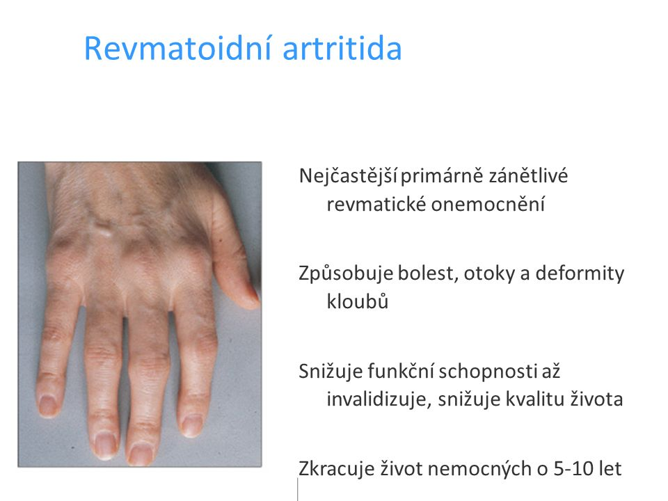Revmatoidní artritida Nejčastější primárně zánětlivé revmatické onemocnění Způsobuje bolest, otoky a deformity kloubů Snižuje funkční schopnosti až invalidizuje, snižuje kvalitu života Zkracuje život nemocných o 5-10 let