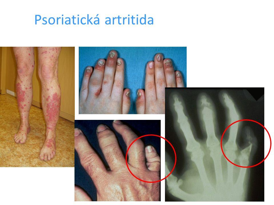 Artritida DIP kloubu, psoriatické postižení nehtů Dolíčkování nehtů