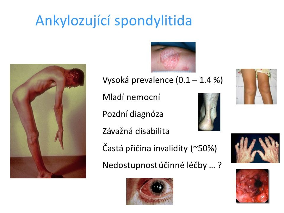 Ankylozující spondylitida Vysoká prevalence (0.1 – 1.4 %) Mladí nemocní Pozdní diagnóza Závažná disabilita Častá příčina invalidity (~50%) Nedostupnos