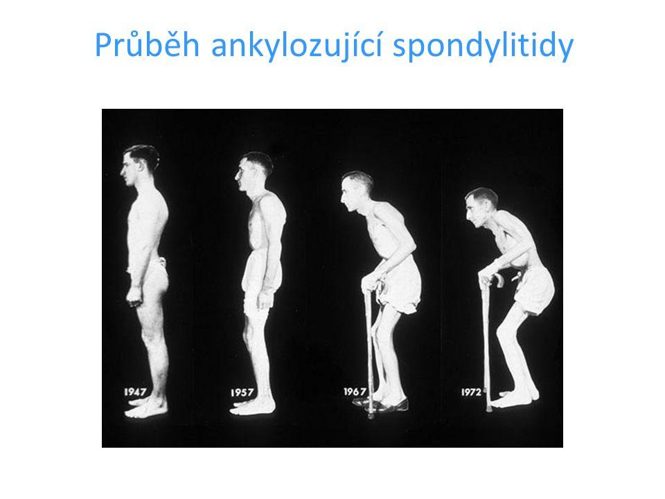 Průběh ankylozující spondylitidy