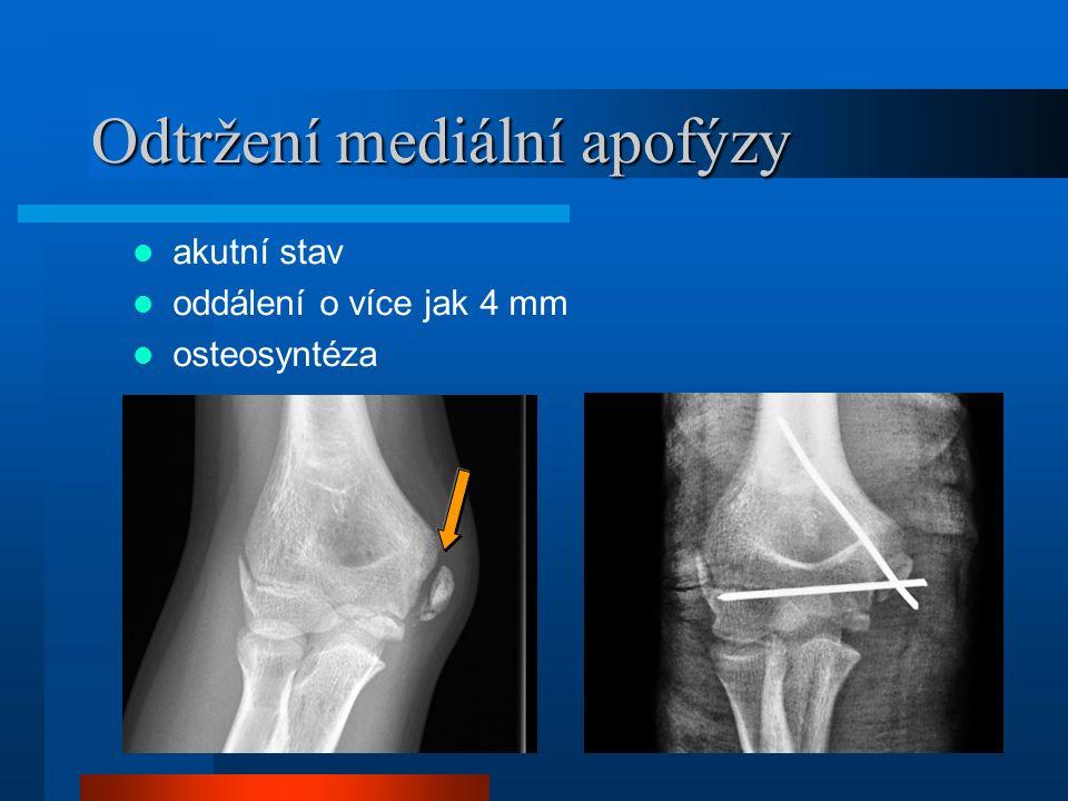 Odtržení mediální apofýzy akutní stav oddálení o více jak 4 mm osteosyntéza