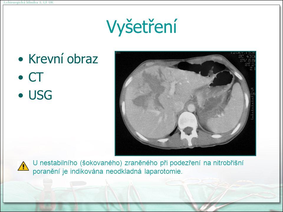 Vyšetření Krevní obraz CT USG U nestabilního (šokovaného) zraněného při podezření na nitrobřišní poranění je indikována neodkladná laparotomie.