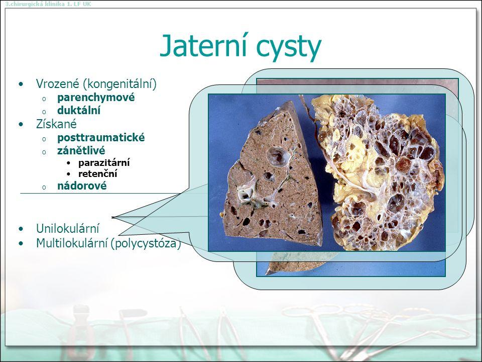 Jaterní cysty Vrozené (kongenitální) o parenchymové o duktální Získané o posttraumatické o zánětlivé parazitární retenční o nádorové Unilokulární Multilokulární (polycystóza)