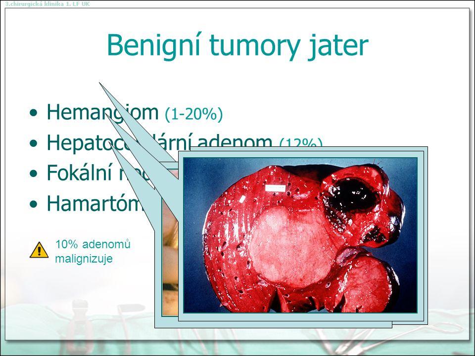 Benigní tumory jater Hemangiom (1-20%) Hepatocelulární adenom (12%) Fokální nodulární hyperplázie (1-2%) Hamartóm 10% adenomů malignizuje