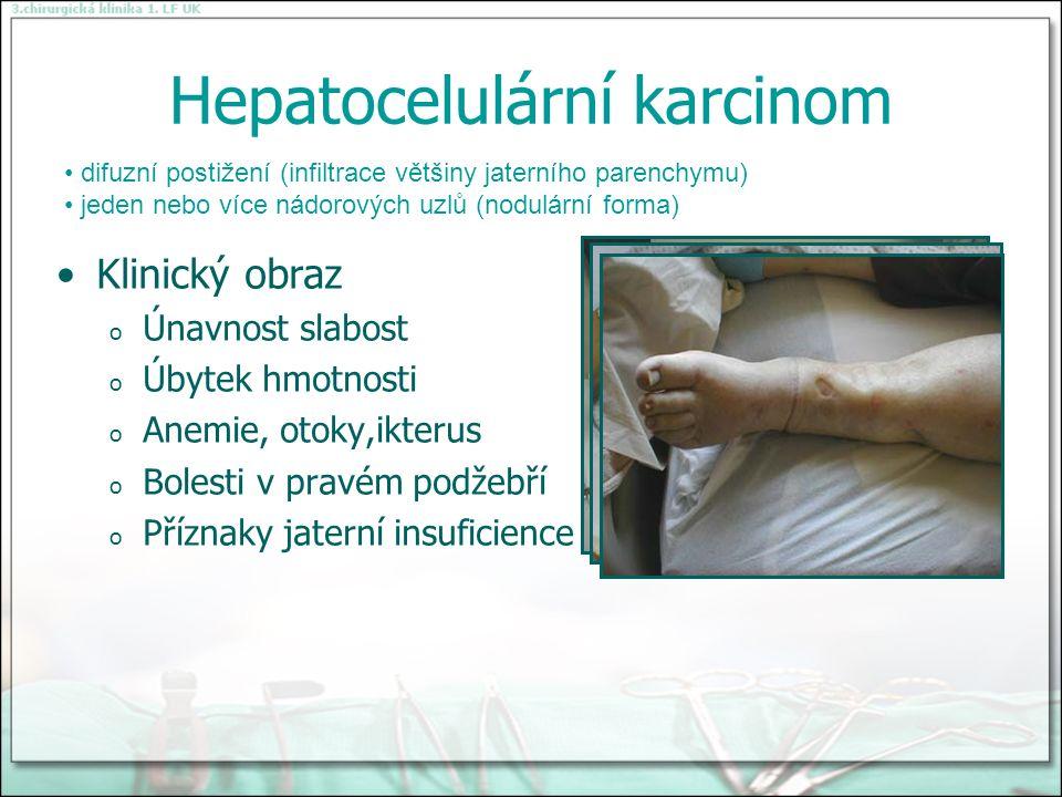 Hepatocelulární karcinom Klinický obraz o Únavnost slabost o Úbytek hmotnosti o Anemie, otoky,ikterus o Bolesti v pravém podžebří o Příznaky jaterní insuficience difuzní postižení (infiltrace většiny jaterního parenchymu) jeden nebo více nádorových uzlů (nodulární forma)